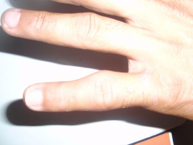 dedo meñique hinchado